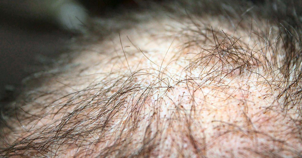 Starker Haarausfall bei männlicher Person